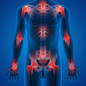 outline of skeleton showing regions of inflammation