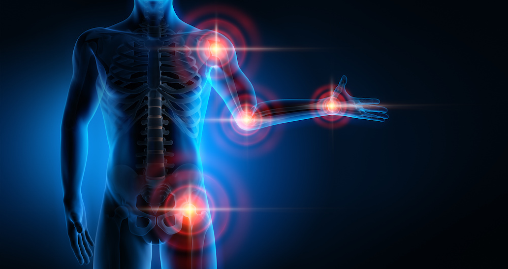 Prolozone Therapy and Pain Relief